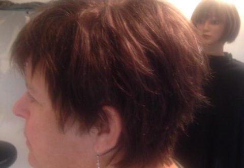 Vivi Hairdesign afhjælper skaldethed